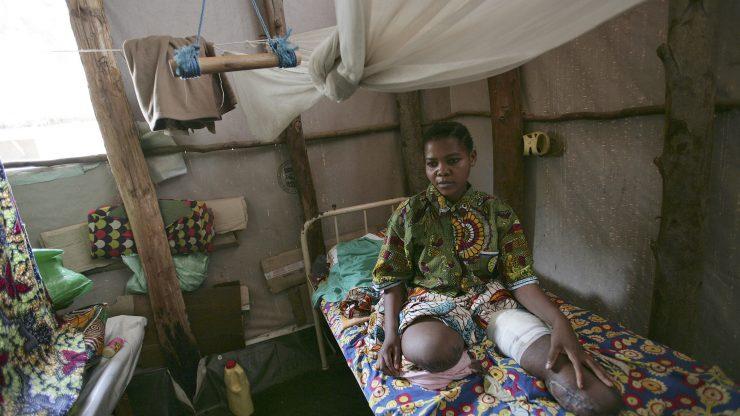 Kabibi Tabu verlor 2006 beide Beine durch eine Landminenexplosion in der Demokratischen Republik Kongo. Foto UN/Martine Perret